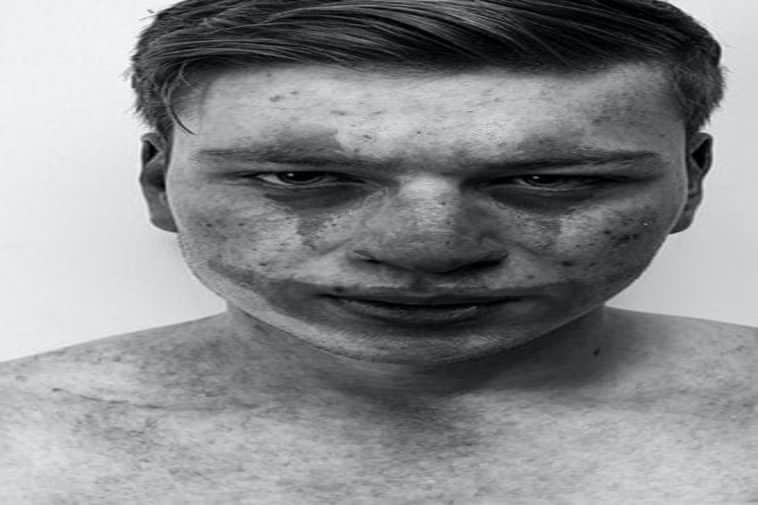 Borderline Personality Disorder Quiz